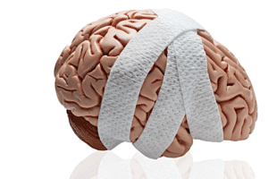 Image of fake brain wrapped in bandage