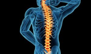 Texas Spinal Cord Injury Lawyer